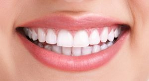 Hollywood Smile Treatment – Advantages & Disadvantages