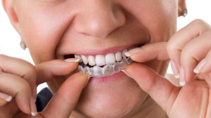 Top benefits of using Invisalign for teeth